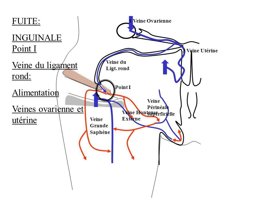 FUITE: INGUINALE Point I Veine du ligament rond: Alimentation Veines ovarienne et utérine 3 Veine Utérine 1 Veine Ovarienne Veine du Ligt. rond Point