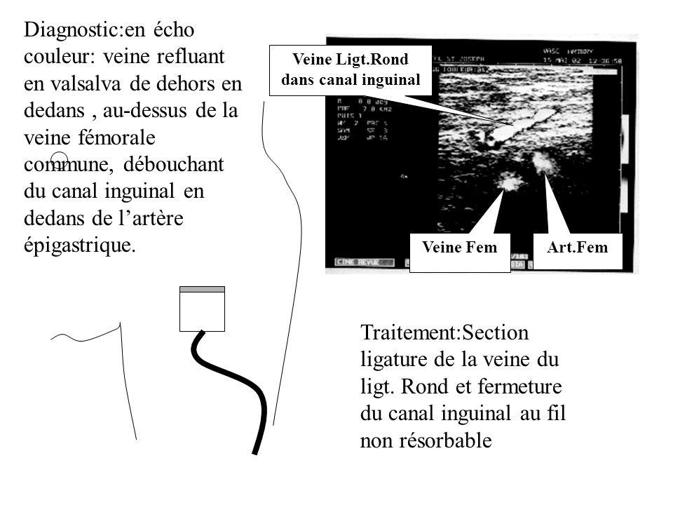 Art.Fem Veine Fem Veine Ligt.Rond dans canal inguinal Traitement:Section ligature de la veine du ligt. Rond et fermeture du canal inguinal au fil non