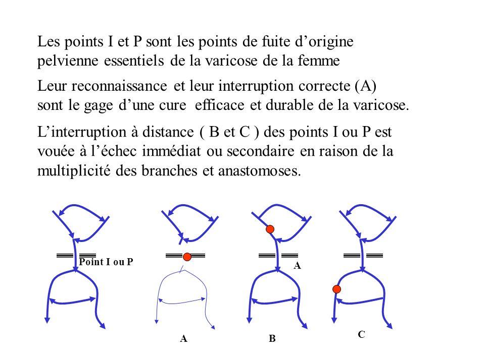Les points I et P sont les points de fuite dorigine pelvienne essentiels de la varicose de la femme Leur reconnaissance et leur interruption correcte