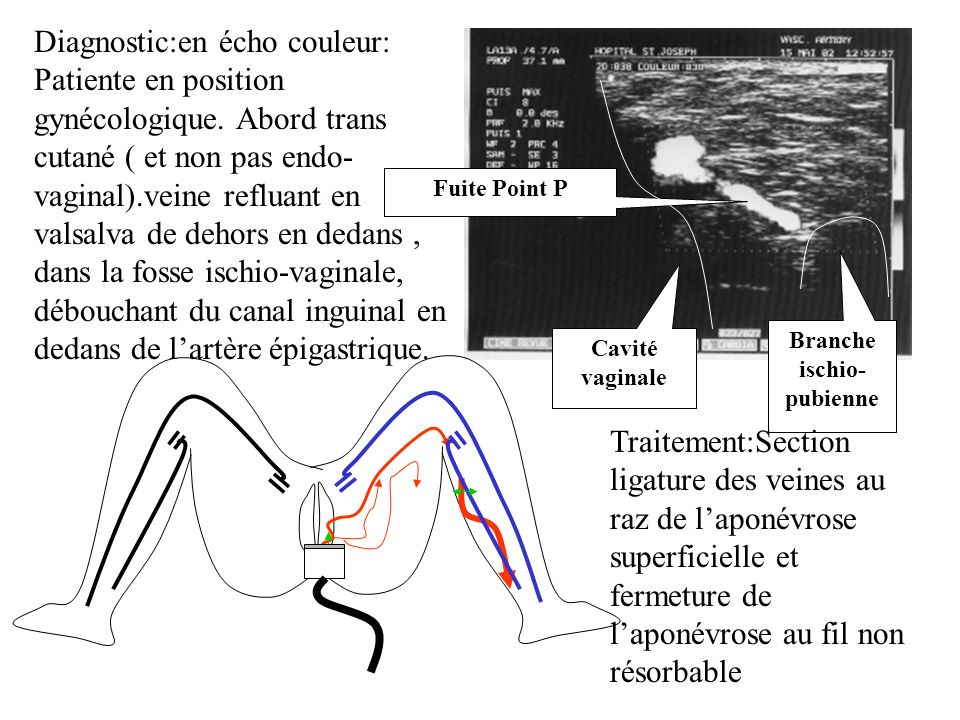 Branche ischio- pubienne Cavité vaginale Fuite Point P Traitement:Section ligature des veines au raz de laponévrose superficielle et fermeture de lapo