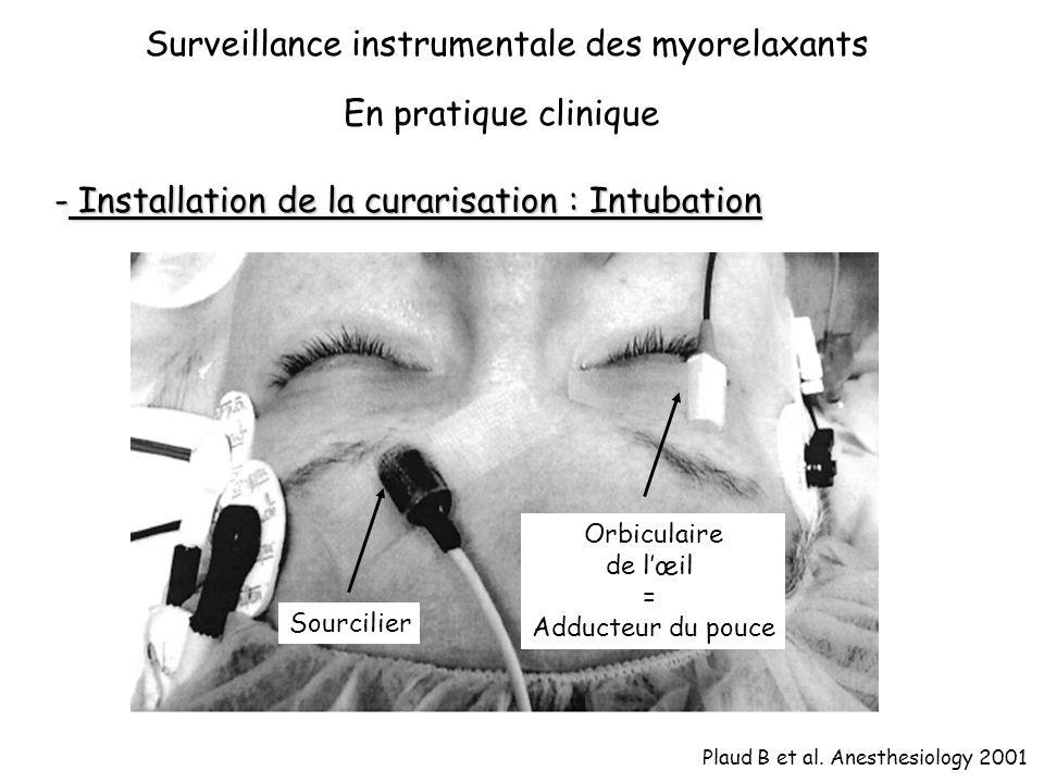 Surveillance instrumentale des myorelaxants En pratique clinique - Installation de la curarisation : Intubation Plaud B et al.
