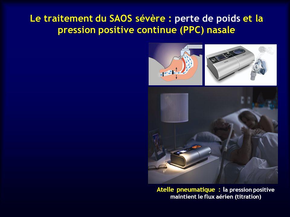 Le traitement du SAOS sévère : perte de poids et la pression positive continue (PPC) nasale Atelle pneumatique : l a pression positive maintient le fl