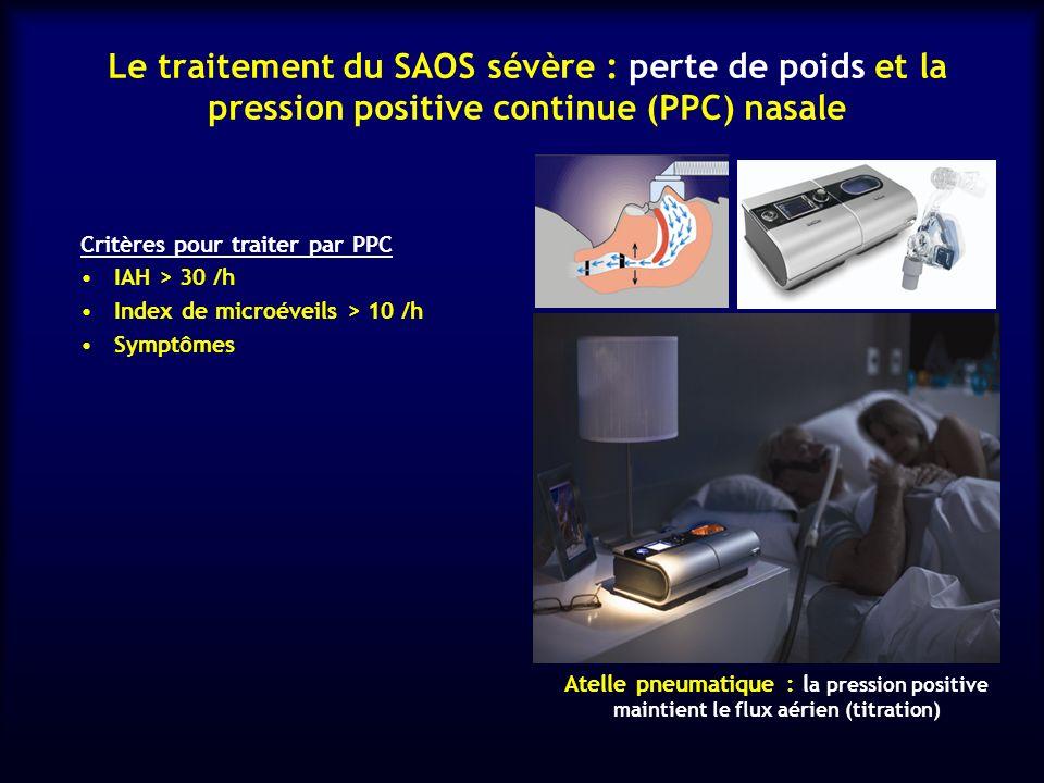 Le traitement du SAOS sévère : perte de poids et la pression positive continue (PPC) nasale Critères pour traiter par PPC IAH > 30 /h Index de microév