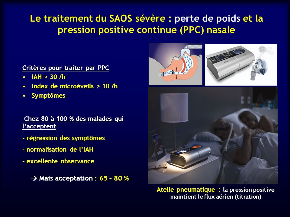 Le traitement du SAOS sévère : perte de poids et la pression positive continue (PPC) nasale Chez 80 à 100 % des malades qui lacceptent - régression de