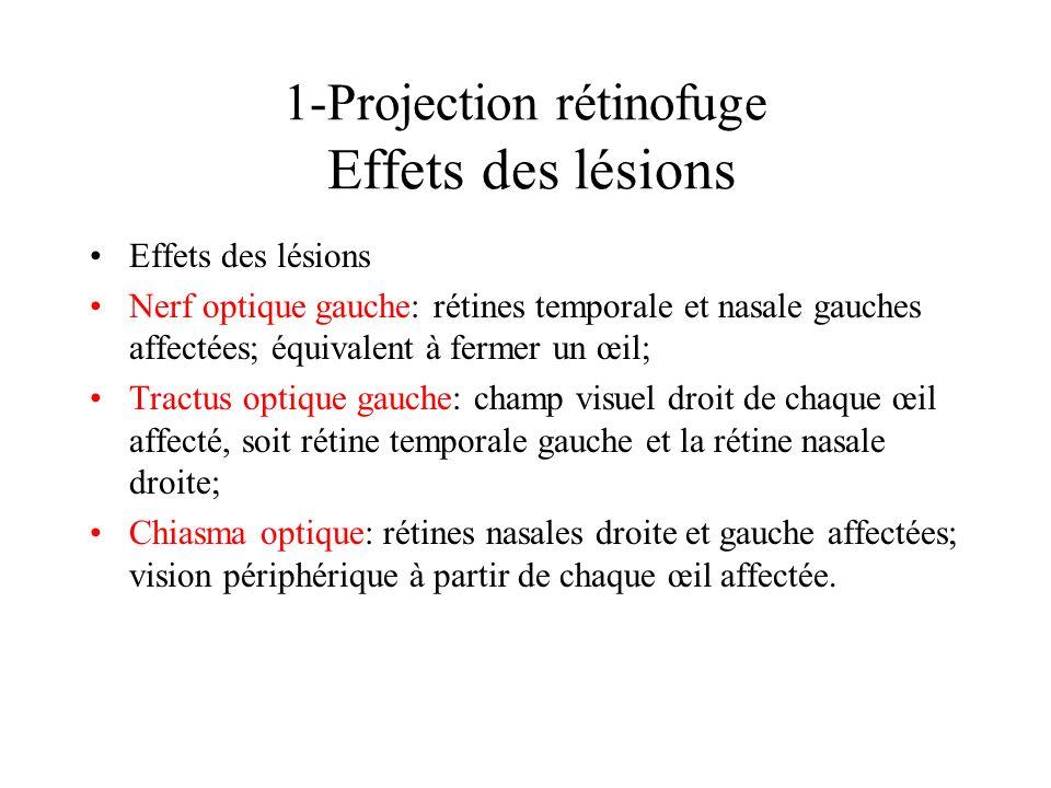 1-Projection rétinofuge Effets des lésions Effets des lésions Nerf optique gauche: rétines temporale et nasale gauches affectées; équivalent à fermer
