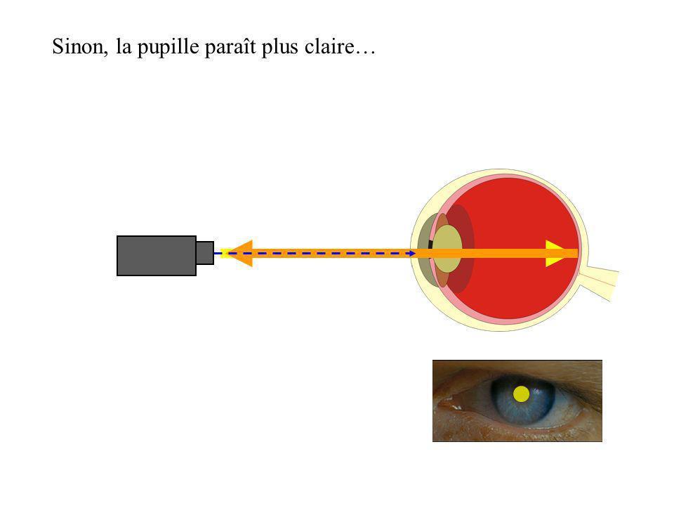 Sinon, la pupille paraît plus claire…
