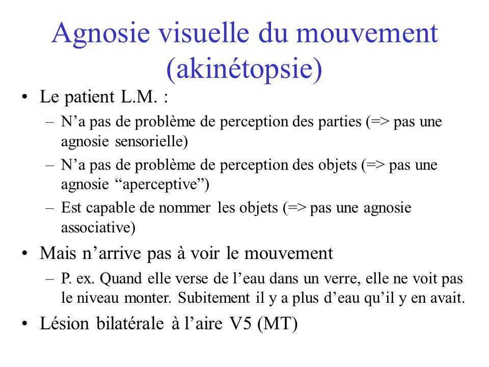 Agnosie visuelle du mouvement (akinétopsie) Le patient L.M. : –Na pas de problème de perception des parties (=> pas une agnosie sensorielle) –Na pas d