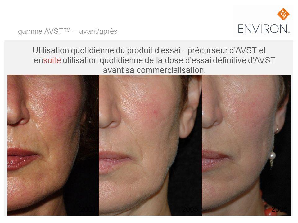 gamme AVST – avant/après Utilisation quotidienne du produit d'essai - précurseur d'AVST et ensuite utilisation quotidienne de la dose d'essai définiti