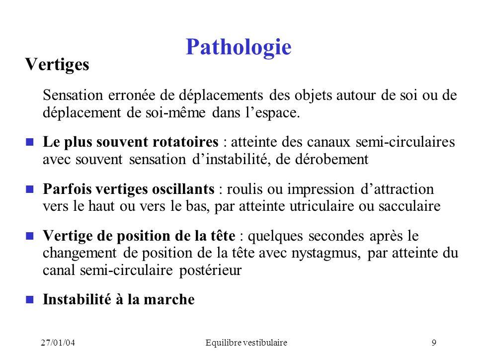 27/01/04Equilibre vestibulaire9 Pathologie Vertiges Sensation erronée de déplacements des objets autour de soi ou de déplacement de soi-même dans lesp