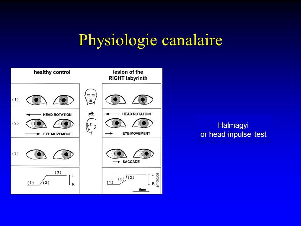Physiologie canalaire Halmagyi or head-inpulse test