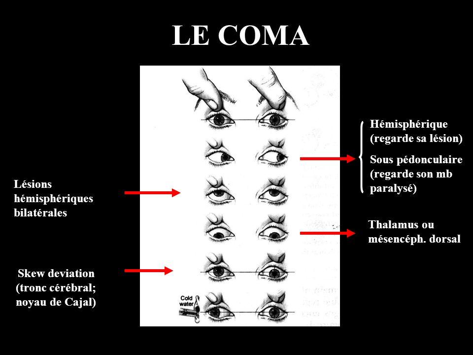 LE COMA Skew deviation (tronc cérébral; noyau de Cajal) Hémisphérique (regarde sa lésion) Sous pédonculaire (regarde son mb paralysé) Thalamus ou mése