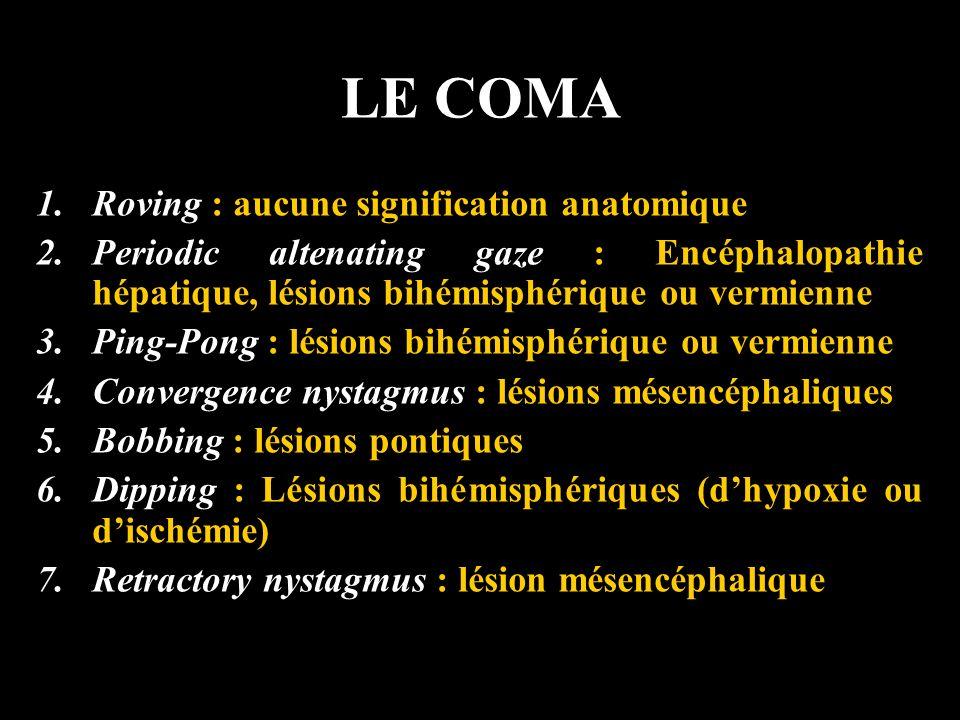 LE COMA 1.Roving : aucune signification anatomique 2.Periodic altenating gaze : Encéphalopathie hépatique, lésions bihémisphérique ou vermienne 3.Ping