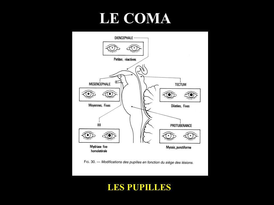 LE COMA LES PUPILLES