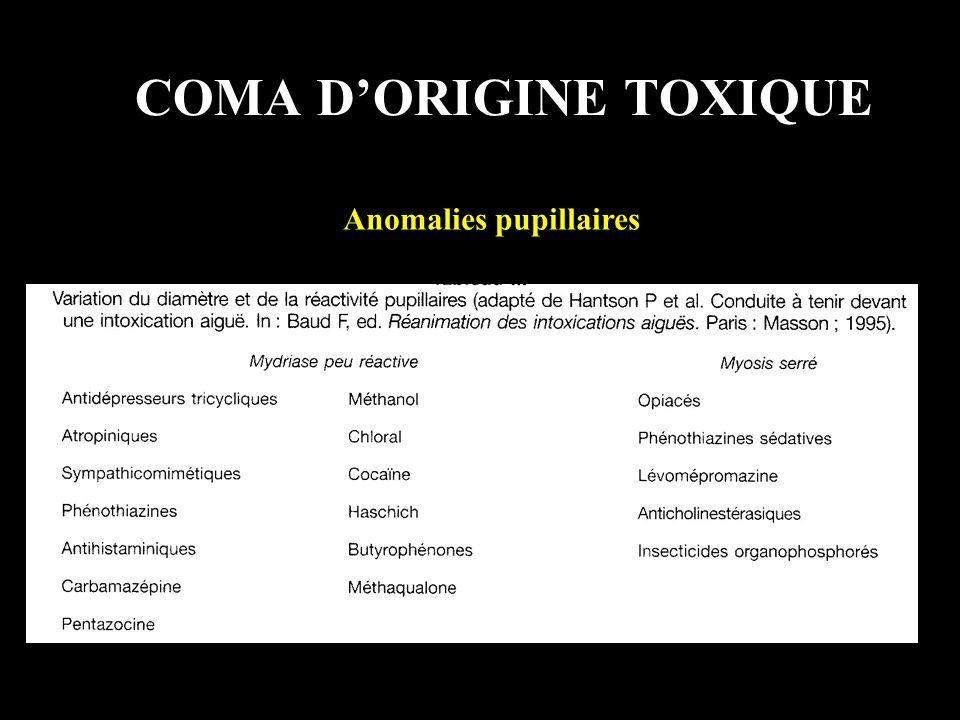 COMA DORIGINE TOXIQUE Anomalies pupillaires