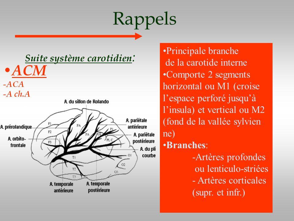Rappels Suite système carotidien : ACM -ACA -A ch.A Principale branche de la carotide interne Comporte 2 segments horizontal ou M1 (croise lespace per