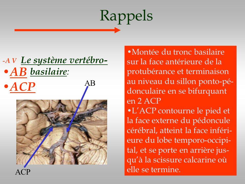 Rappels Le système vertébro- basilaire : -A V AB ACP Montée du tronc basilaire sur la face antérieure de la protubérance et terminaison au niveau du s