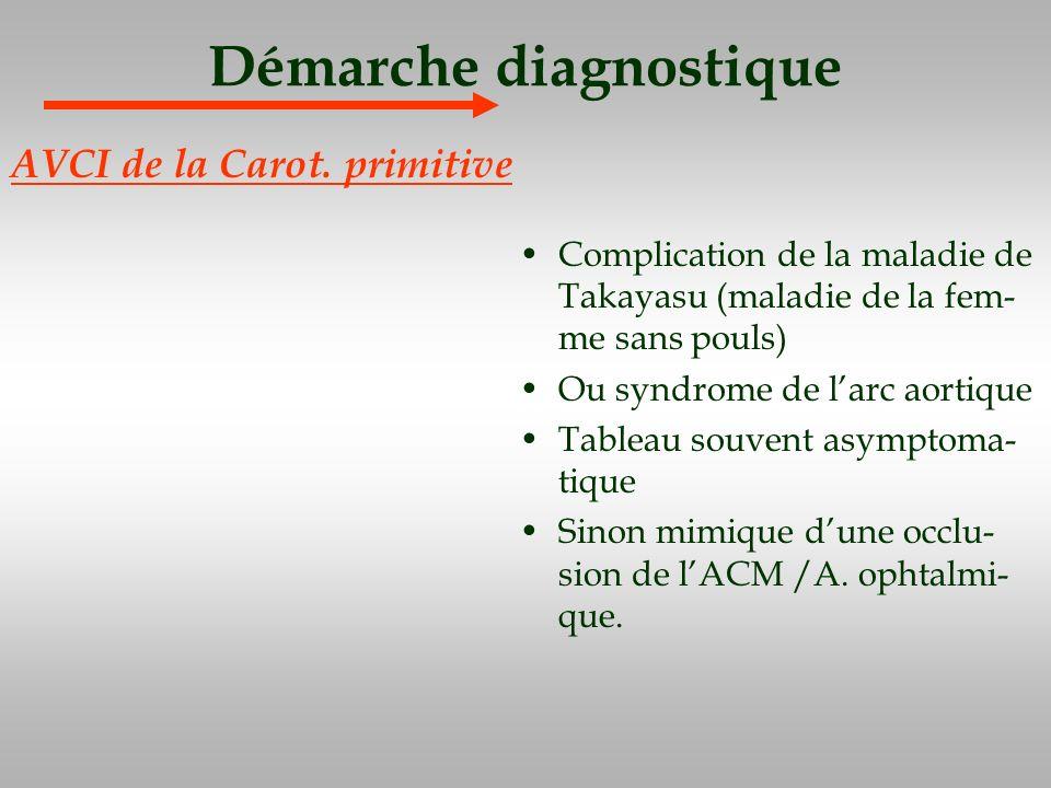 Démarche diagnostique Complication de la maladie de Takayasu (maladie de la fem- me sans pouls) Ou syndrome de larc aortique Tableau souvent asymptoma