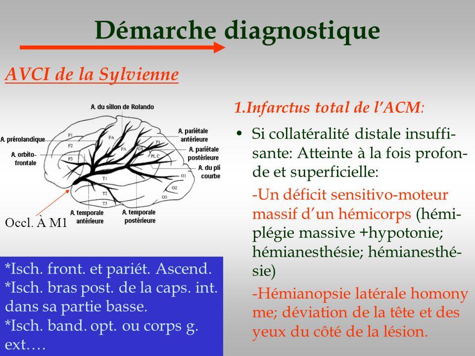 Démarche diagnostique 1.Infarctus total de lACM : Si collatéralité distale insuffi- sante: Atteinte à la fois profon- de et superficielle: -Un déficit