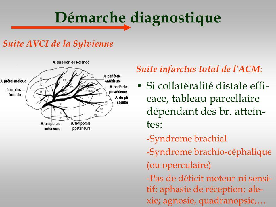 Démarche diagnostique Suite infarctus total de lACM : Si collatéralité distale effi- cace, tableau parcellaire dépendant des br. attein- tes: -Syndrom