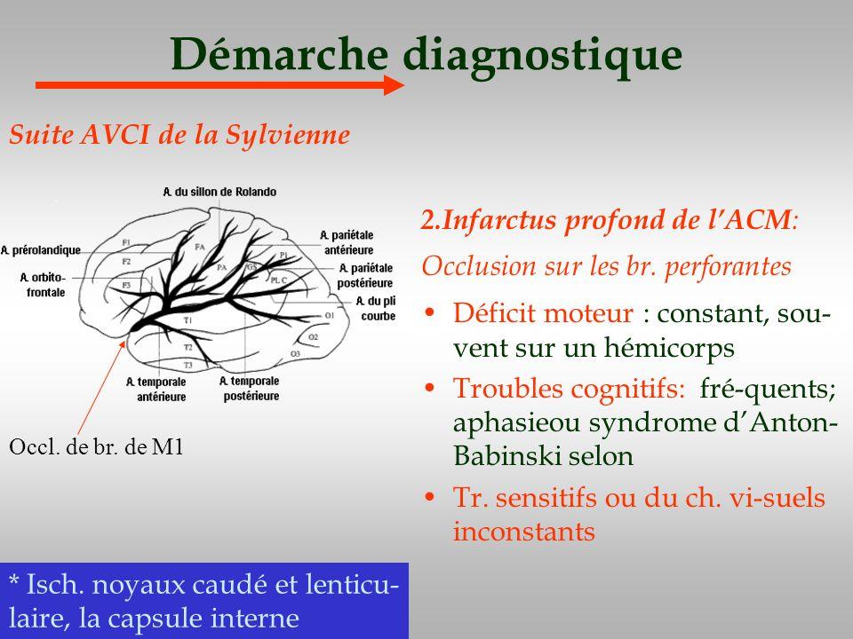 Démarche diagnostique 2.Infarctus profond de lACM : Occlusion sur les br. perforantes Déficit moteur : constant, sou- vent sur un hémicorps Troubles c