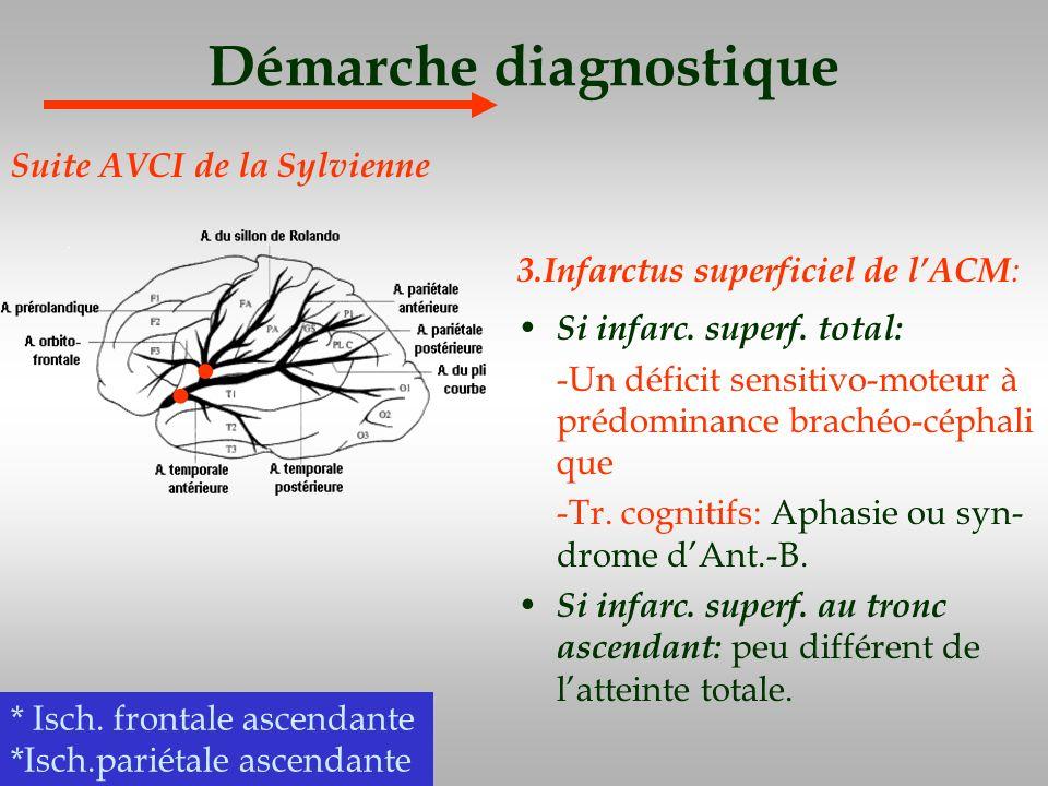 Démarche diagnostique 3.Infarctus superficiel de lACM : Si infarc. superf. total: -Un déficit sensitivo-moteur à prédominance brachéo-céphali que -Tr.