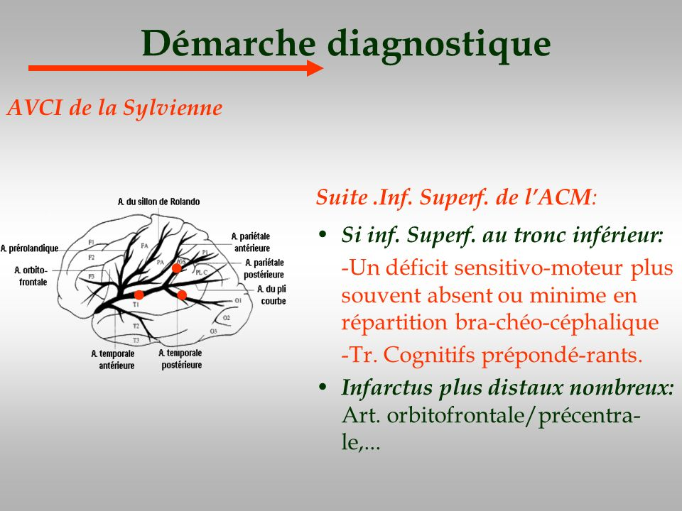 Démarche diagnostique Suite.Inf. Superf. de lACM : Si inf. Superf. au tronc inférieur: -Un déficit sensitivo-moteur plus souvent absent ou minime en r