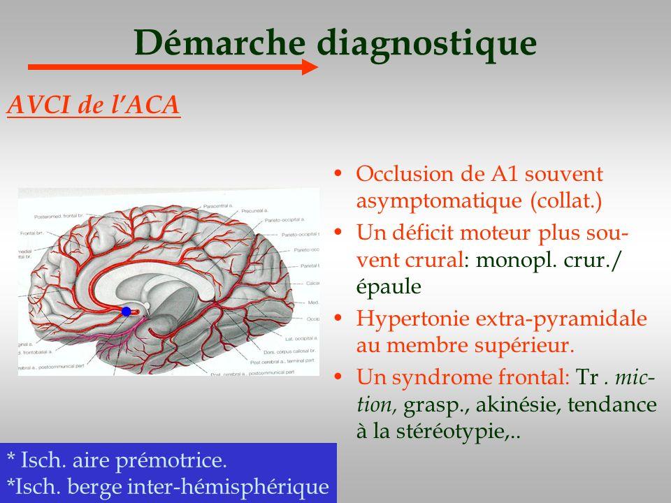 Démarche diagnostique Occlusion de A1 souvent asymptomatique (collat.) Un déficit moteur plus sou- vent crural: monopl. crur./ épaule Hypertonie extra