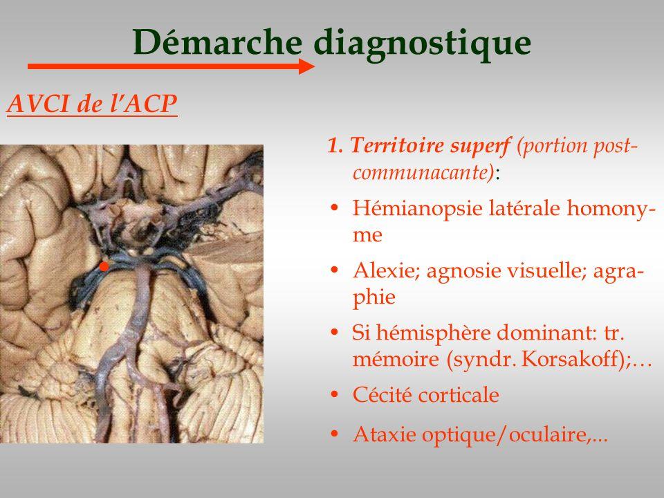 Démarche diagnostique 1. Territoire superf (portion post- communacante) : Hémianopsie latérale homony- me Alexie; agnosie visuelle; agra- phie Si hémi