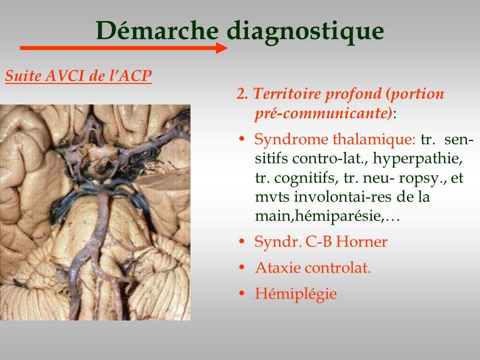 Démarche diagnostique 2. Territoire profond (portion pré-communicante) : Syndrome thalamique: tr. sen- sitifs contro-lat., hyperpathie, tr. cognitifs,