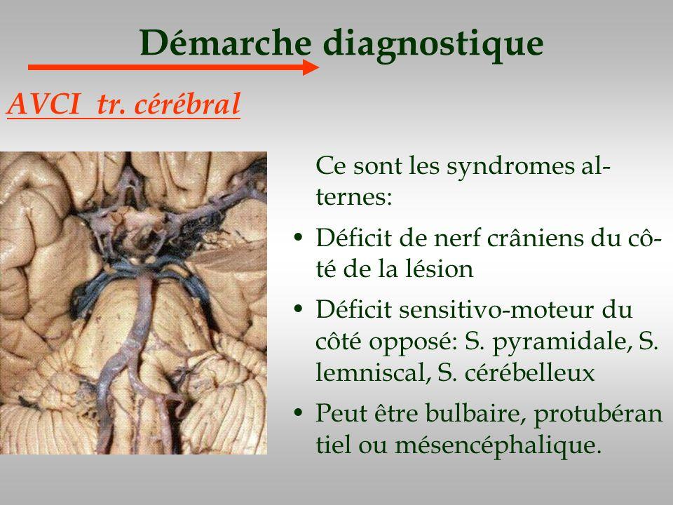 Démarche diagnostique Ce sont les syndromes al- ternes: Déficit de nerf crâniens du cô- té de la lésion Déficit sensitivo-moteur du côté opposé: S. py