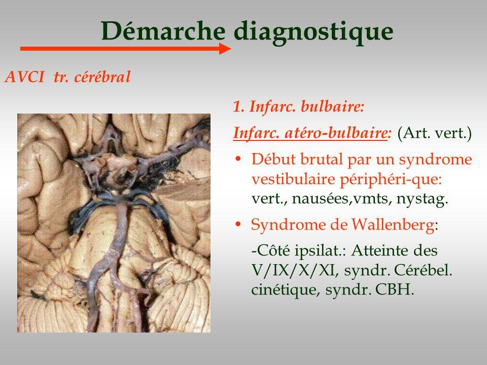 Démarche diagnostique 1. Infarc. bulbaire: Infarc. atéro-bulbaire: (Art. vert.) Début brutal par un syndrome vestibulaire périphéri-que: vert., nausée