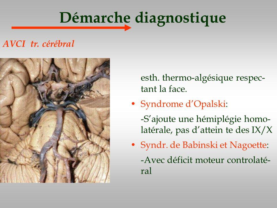 Démarche diagnostique esth. thermo-algésique respec- tant la face. Syndrome dOpalski: -Sajoute une hémiplégie homo- latérale, pas dattein te des IX/X