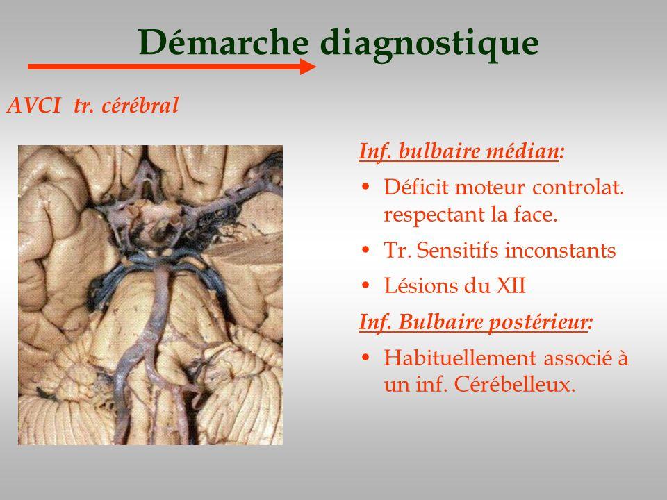 Démarche diagnostique Inf. bulbaire médian: Déficit moteur controlat. respectant la face. Tr. Sensitifs inconstants Lésions du XII Inf. Bulbaire posté