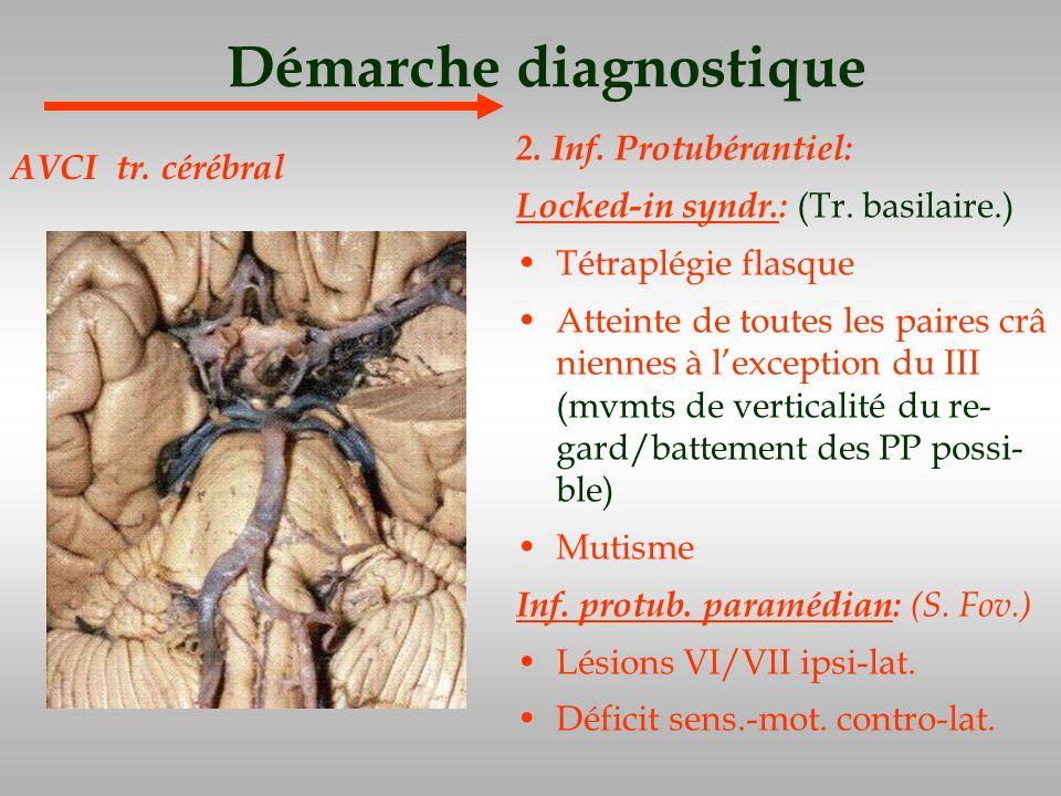 Démarche diagnostique 2. Inf. Protubérantiel: Locked-in syndr.: (Tr. basilaire.) Tétraplégie flasque Atteinte de toutes les paires crâ niennes à lexce
