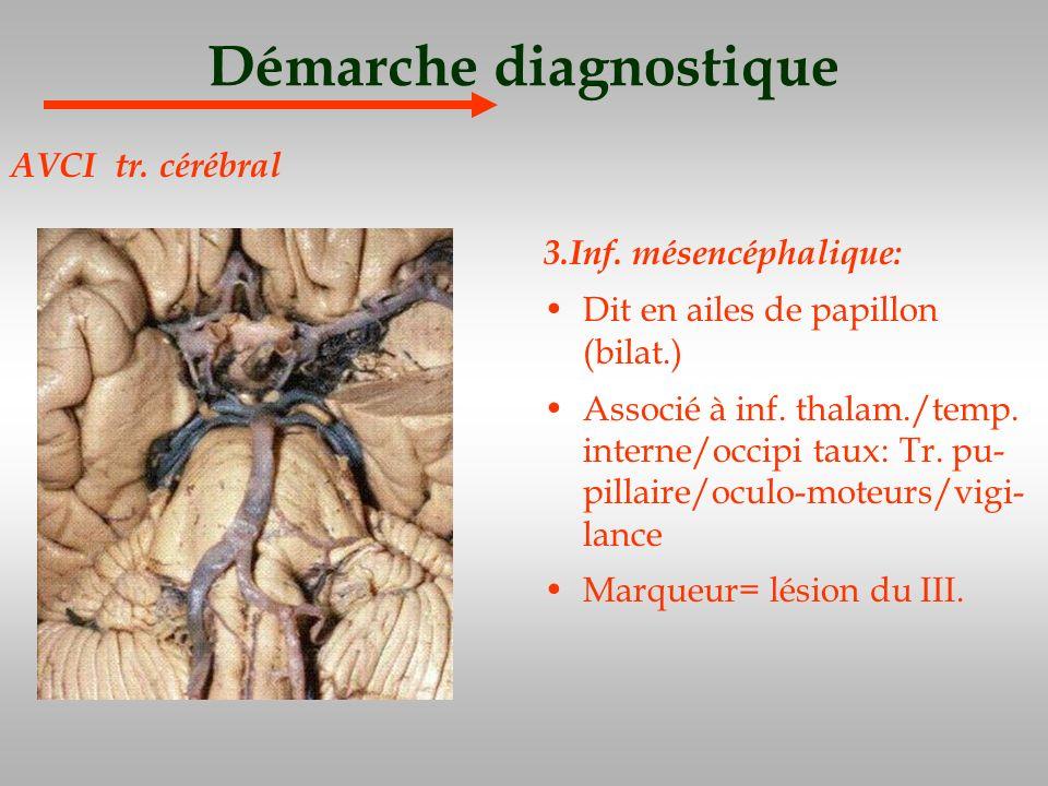 Démarche diagnostique 3.Inf. mésencéphalique: Dit en ailes de papillon (bilat.) Associé à inf. thalam./temp. interne/occipi taux: Tr. pu- pillaire/ocu