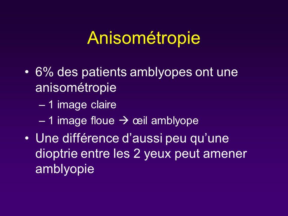 Anisométropie 6% des patients amblyopes ont une anisométropie –1 image claire –1 image floue œil amblyope Une différence daussi peu quune dioptrie ent