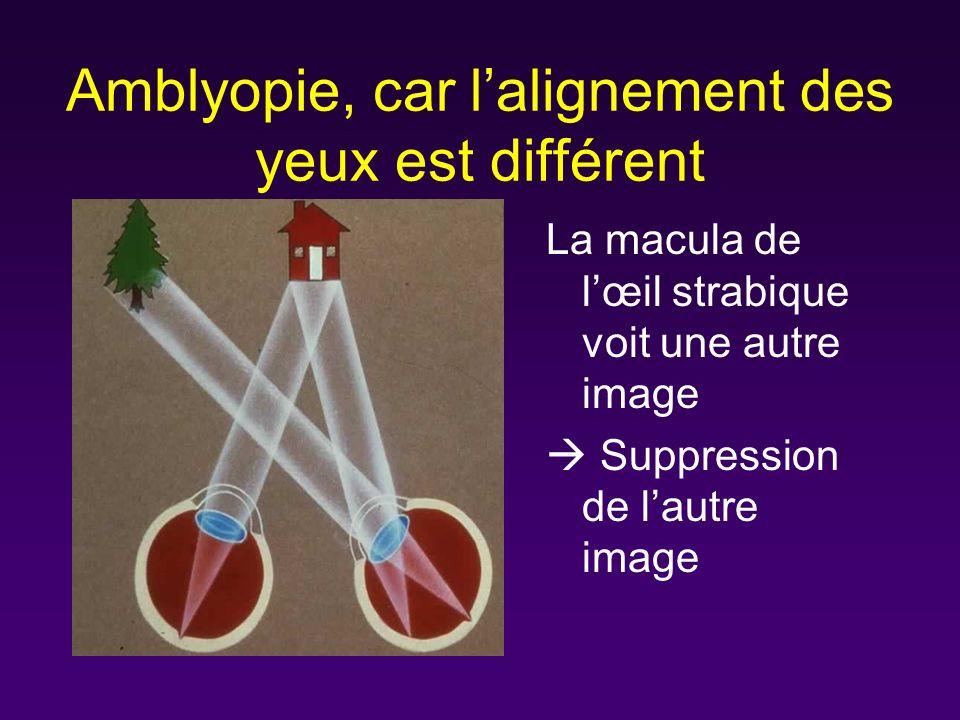 Amblyopie, car lalignement des yeux est différent La macula de lœil strabique voit une autre image Suppression de lautre image