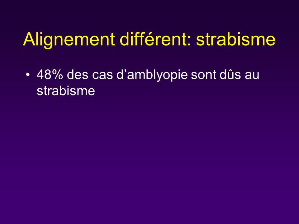 Alignement différent: strabisme 48% des cas damblyopie sont dûs au strabisme