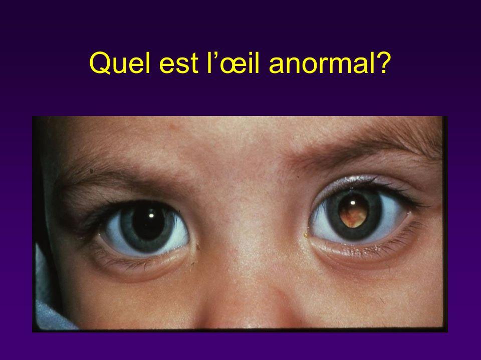 Quel est lœil anormal?