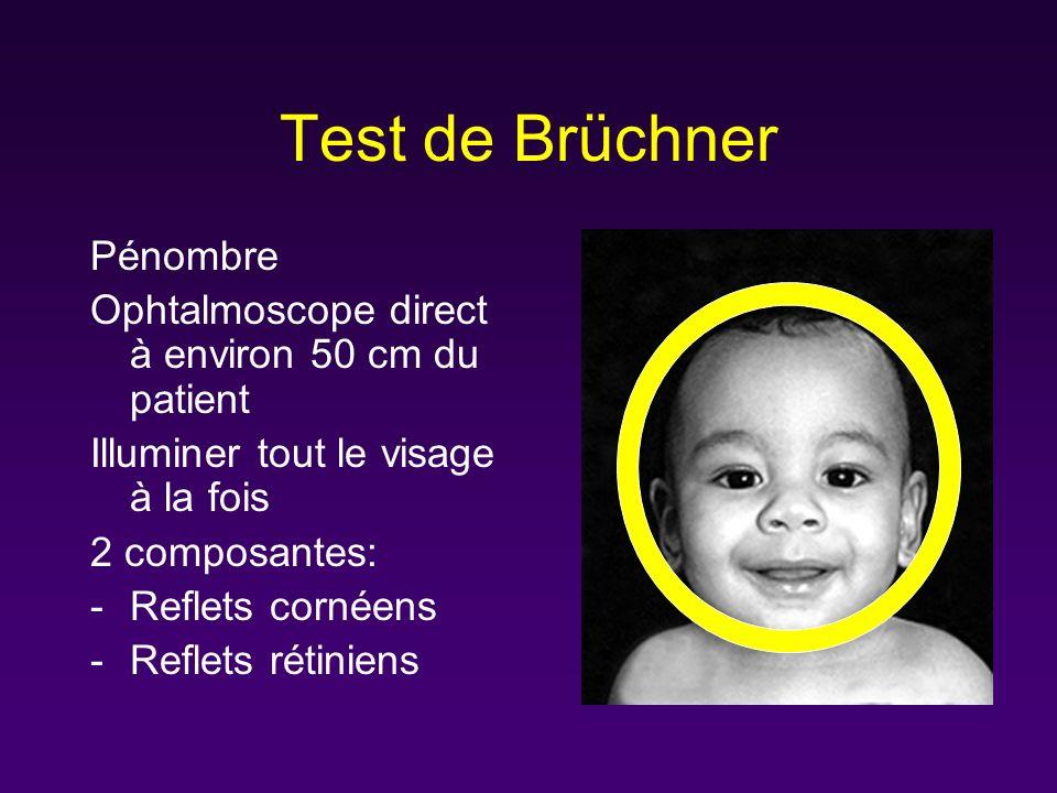 Test de Brüchner Pénombre Ophtalmoscope direct à environ 50 cm du patient Illuminer tout le visage à la fois 2 composantes: -Reflets cornéens -Reflets