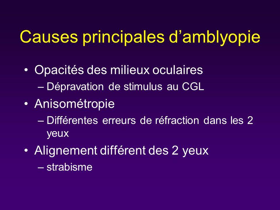 Causes principales damblyopie Opacités des milieux oculaires –Dépravation de stimulus au CGL Anisométropie –Différentes erreurs de réfraction dans les