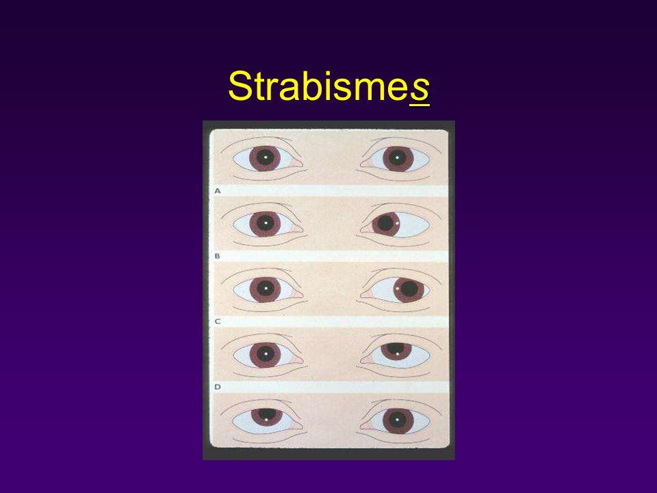 s Strabismes