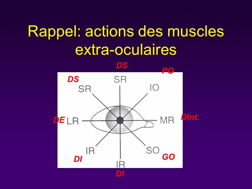 Rappel: actions des muscles extra-oculaires DS PO DInt. GO DI DE DS