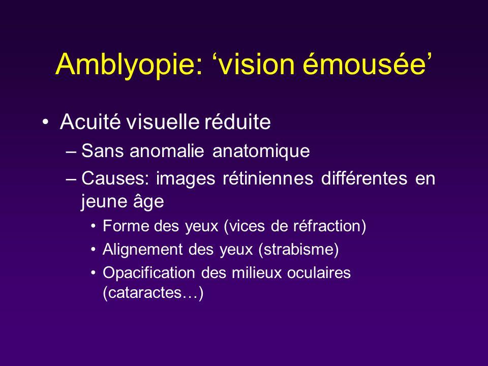 Amblyopie: vision émousée Acuité visuelle réduite –Sans anomalie anatomique –Causes: images rétiniennes différentes en jeune âge Forme des yeux (vices