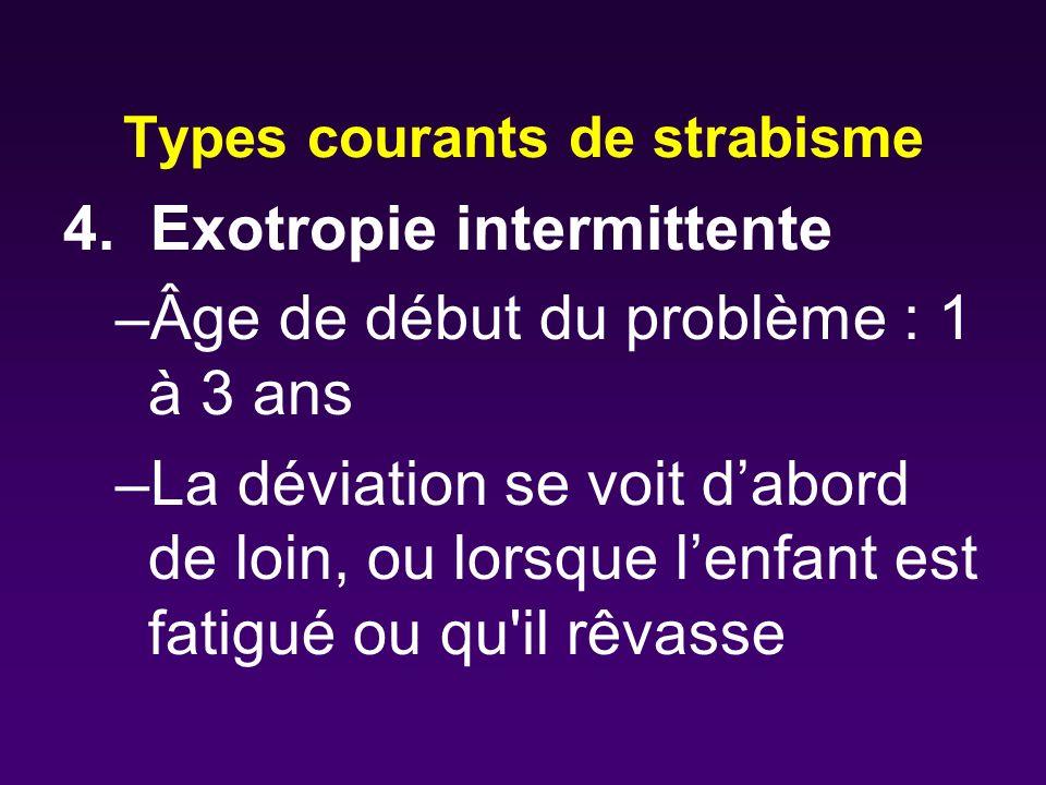 Types courants de strabisme 4. Exotropie intermittente –Âge de début du problème : 1 à 3 ans –La déviation se voit dabord de loin, ou lorsque lenfant