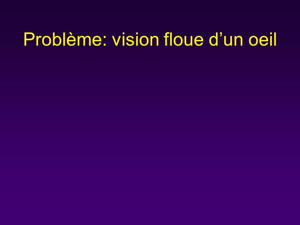 Types courants de strabisme 1.La pseudoésotropie –50 % des cas de strabisme chez les nourrissons –Ésotropie apparente, particulièrement pour le regard de côté –Illusion d ésotropie causée par l épicanthus ou (moins couramment) la distance courte entre les pupilles 2.Ésotropie congénitale –Présente avant l âge de six mois –Angle de déviation ouvert –La fixation peut alterner ou le sujet peut préférer fortement un oeil (l amblyopie sera plus probable si il n y a pas d alternance) –Traitement: chirurgical –Pronostic: potentiel de mauvaise fusion