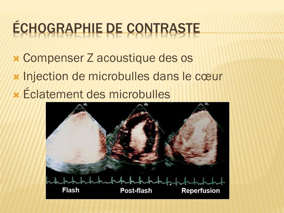 Compenser Z acoustique des os Injection de microbulles dans le cœur Éclatement des microbulles