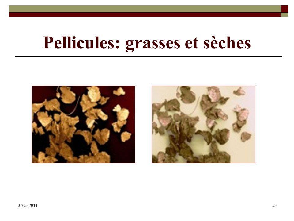 07/05/201455 Pellicules: grasses et sèches