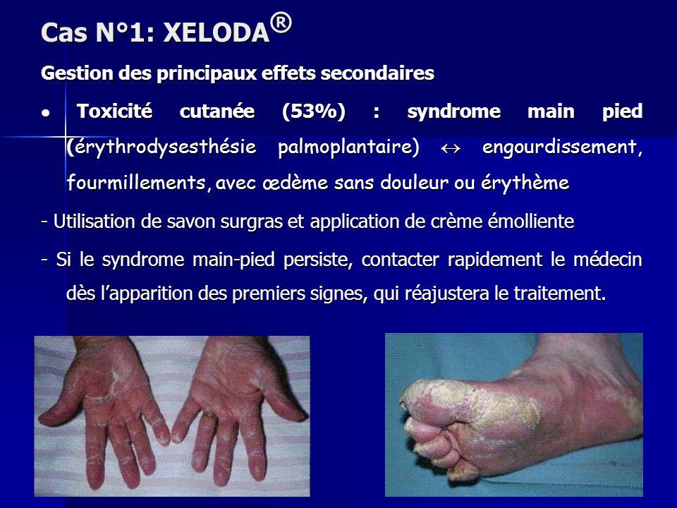 Gestion des principaux effets secondaires Toxicité cutanée (53%) : syndrome main pied ( érythrodysesthésie palmoplantaire) engourdissement, fourmillem