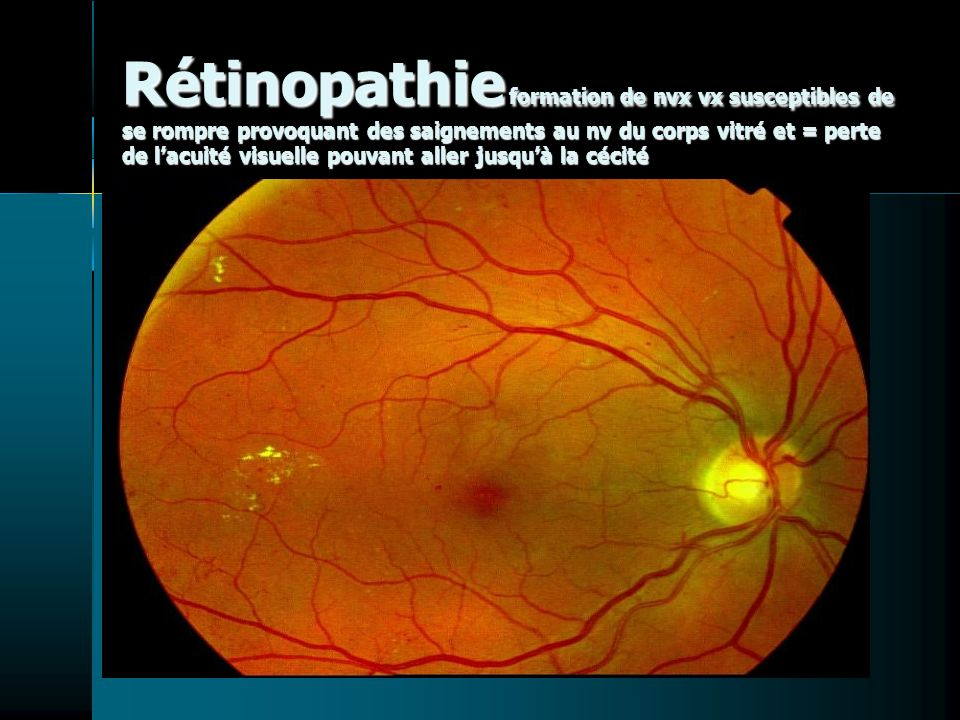 Rétinopathie formation de nvx vx susceptibles de se rompre provoquant des saignements au nv du corps vitré et = perte de lacuité visuelle pouvant aller jusquà la cécité